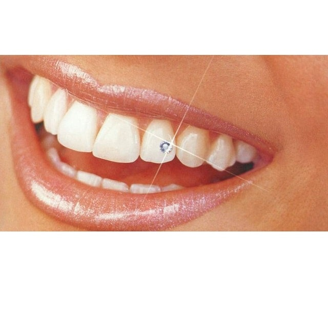 фианиты - украшения для зубов