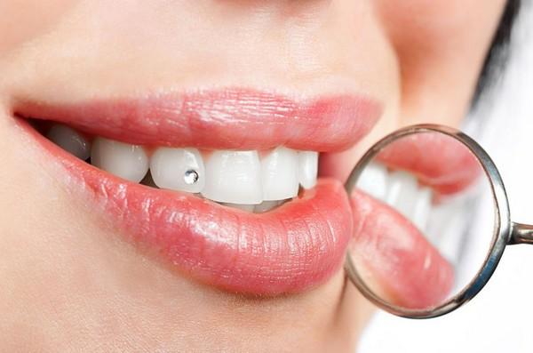 Скайсы стразы для зубов