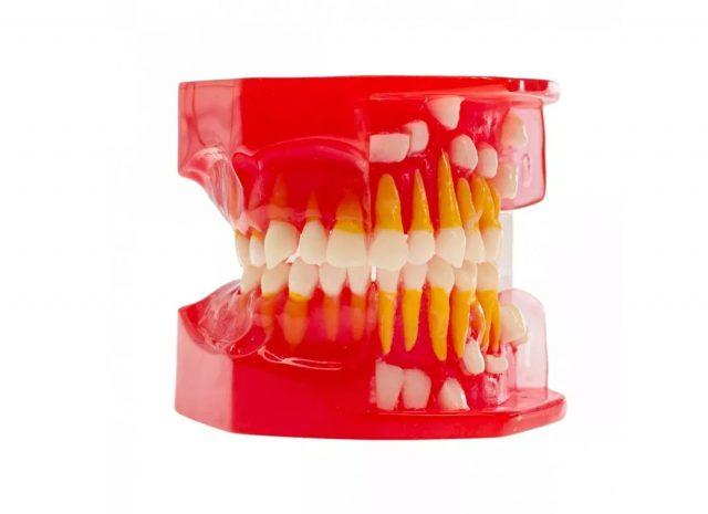 Модель демонстрационная детская (этапы смены прикуса) HST-E4 Материал: пластик; Назначение: Модель демонстрационная - детский прикус, предназначена в качестве учебного пособия для студентов-стоматологов, а также в качестве визуальной мотивации для «маленьких» пациентов и их родителей. На модели представлен молочный прикус и этапы смены молочного прикуса постоянным.